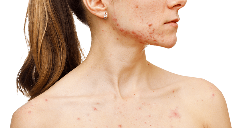 Why Your Acne Products Are Failing You